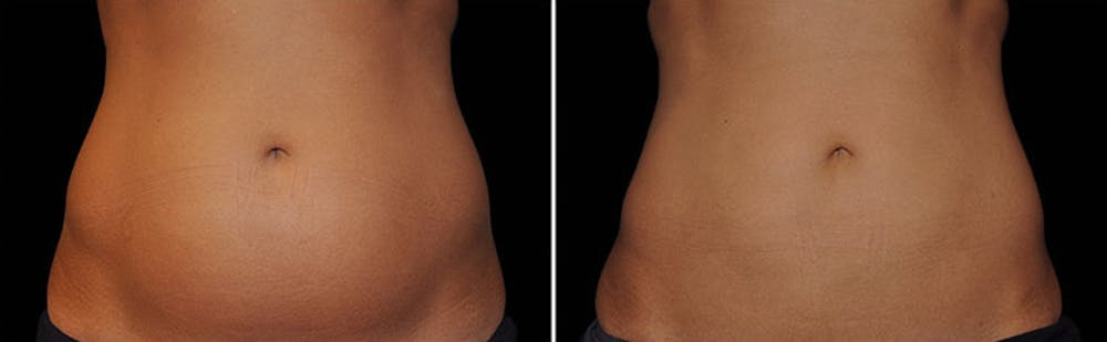 CoolSculpting Gallery - Patient 5750430 - Image 1