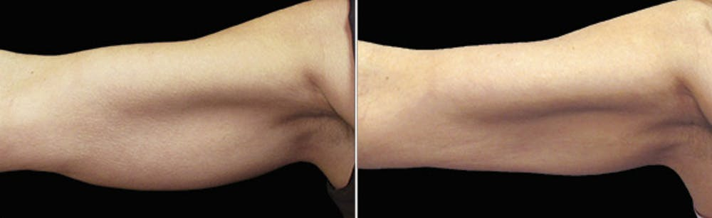 CoolSculpting Gallery - Patient 5750431 - Image 1