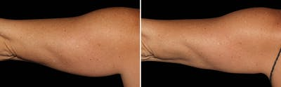 CoolSculpting Gallery - Patient 5750434 - Image 1