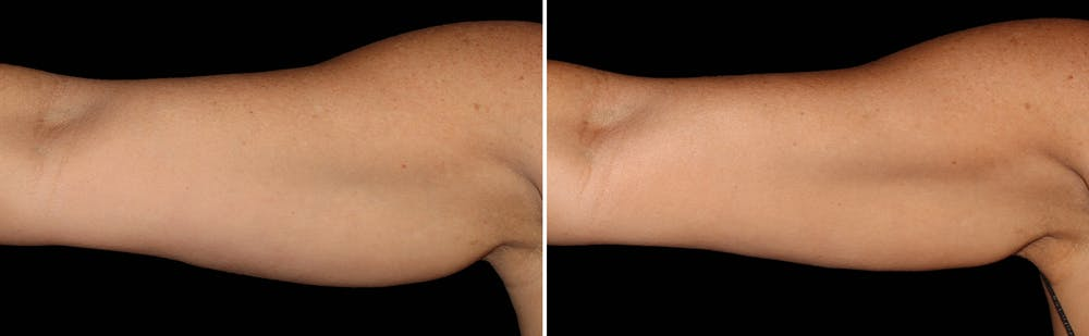 CoolSculpting Gallery - Patient 5750435 - Image 1