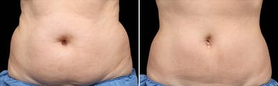 CoolSculpting Gallery - Patient 5750437 - Image 1