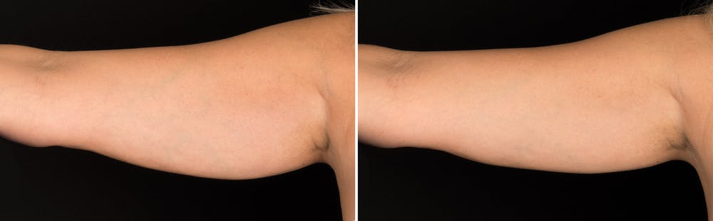 CoolSculpting Gallery - Patient 5750438 - Image 1