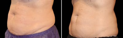 CoolSculpting Gallery - Patient 5750442 - Image 1