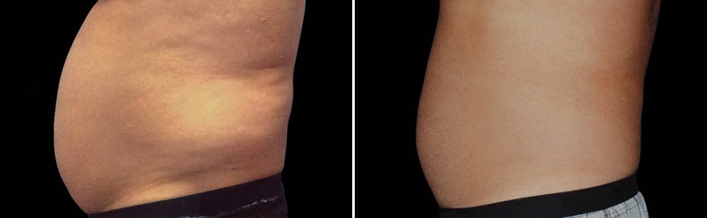 CoolSculpting Gallery - Patient 5750443 - Image 1