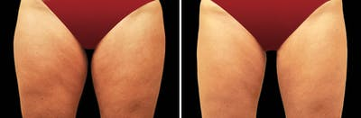 CoolSculpting Gallery - Patient 5750461 - Image 1