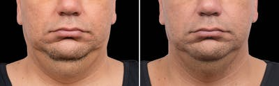 CoolSculpting Gallery - Patient 5750444 - Image 1