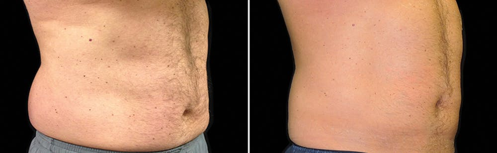 CoolSculpting Gallery - Patient 5750462 - Image 1