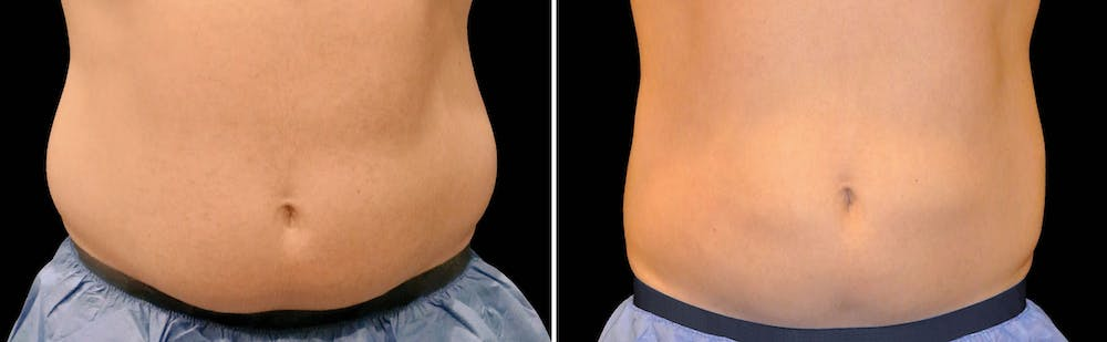 CoolSculpting Gallery - Patient 5750463 - Image 1