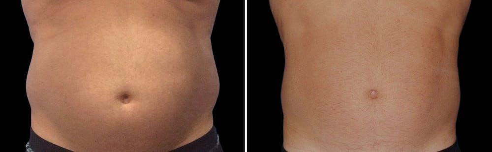 CoolSculpting Gallery - Patient 5750464 - Image 1