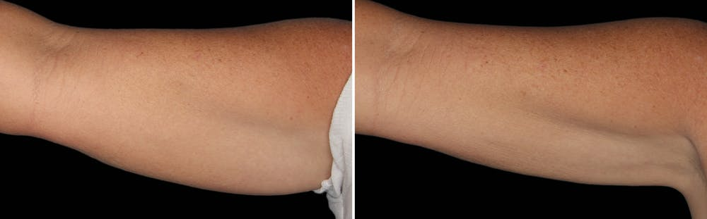 CoolSculpting Gallery - Patient 5750466 - Image 1