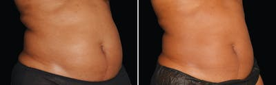 CoolSculpting Gallery - Patient 5750468 - Image 1