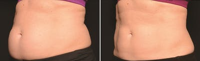 CoolSculpting Gallery - Patient 5750470 - Image 1
