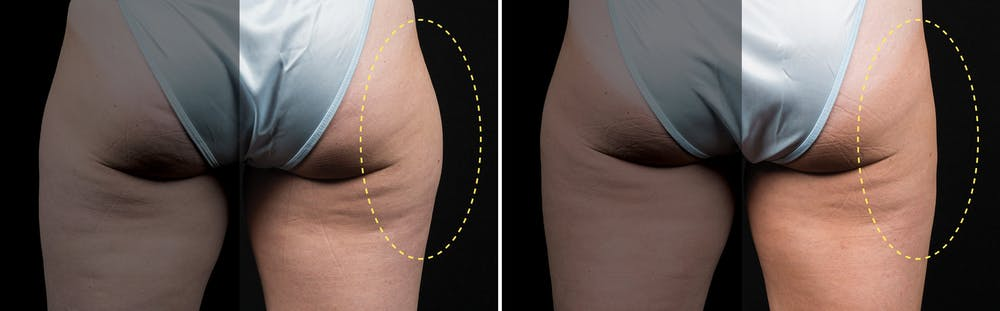 CoolSculpting Gallery - Patient 5750471 - Image 1