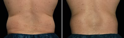 CoolSculpting Gallery - Patient 5750472 - Image 1
