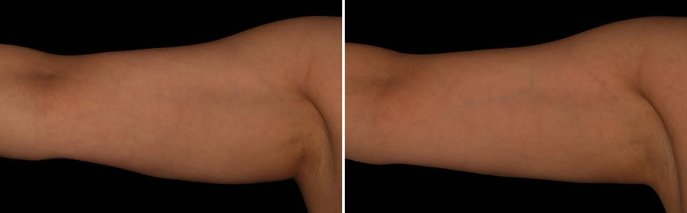 CoolSculpting Gallery - Patient 5750474 - Image 1