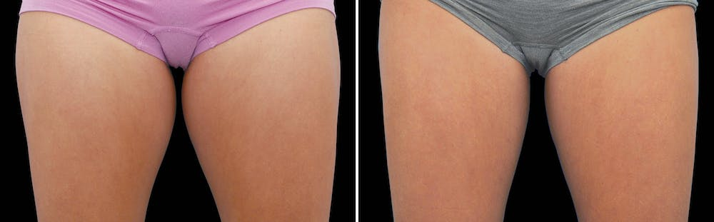 CoolSculpting Gallery - Patient 5750473 - Image 1
