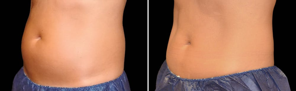 CoolSculpting Gallery - Patient 5750475 - Image 1