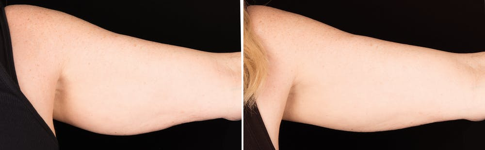 CoolSculpting Gallery - Patient 5750477 - Image 1