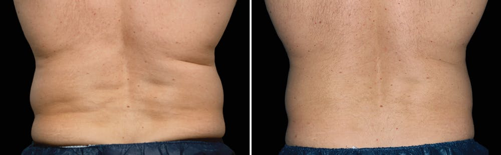 CoolSculpting Gallery - Patient 5750476 - Image 1