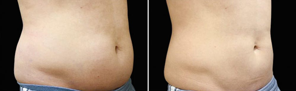 CoolSculpting Gallery - Patient 5750498 - Image 1