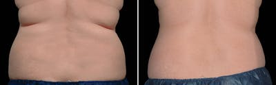 CoolSculpting Gallery - Patient 5750496 - Image 1