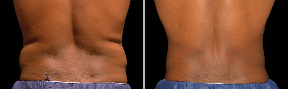CoolSculpting Gallery - Patient 5750495 - Image 1