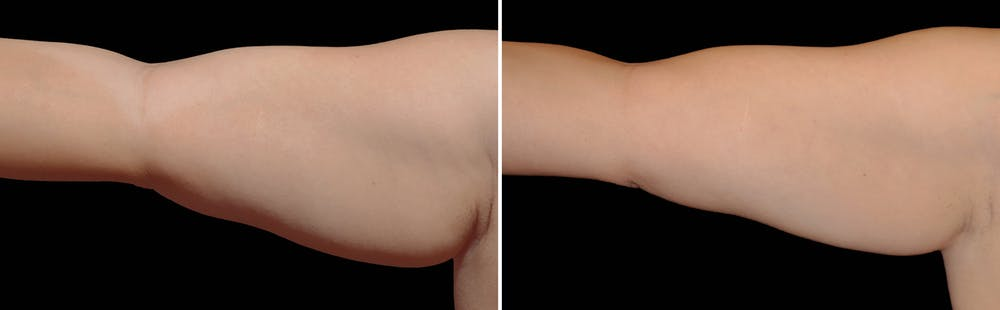 CoolSculpting Gallery - Patient 5750494 - Image 1