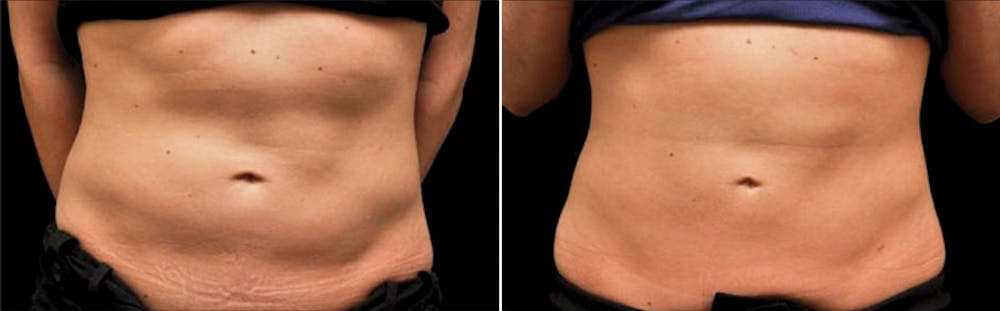 CoolSculpting Gallery - Patient 5750493 - Image 1