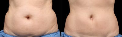 CoolSculpting Gallery - Patient 5750492 - Image 1