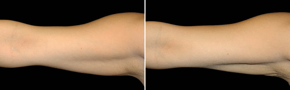 CoolSculpting Gallery - Patient 5750491 - Image 1