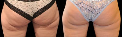 CoolSculpting Gallery - Patient 5750489 - Image 1