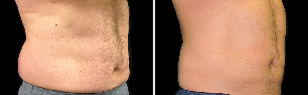 CoolSculpting Gallery - Patient 5750488 - Image 1