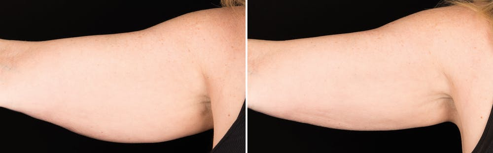 CoolSculpting Gallery - Patient 5750486 - Image 1