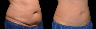 CoolSculpting Gallery - Patient 5750485 - Image 1