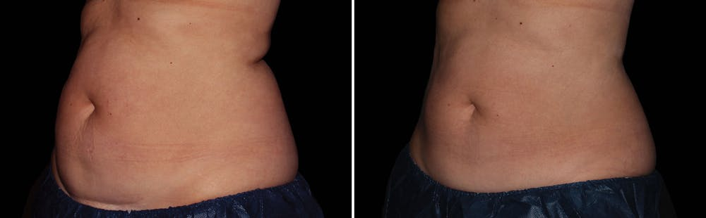 CoolSculpting Gallery - Patient 5750484 - Image 1