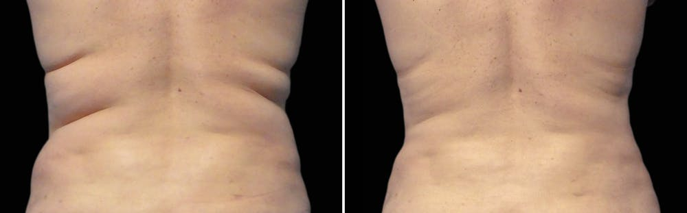 CoolSculpting Gallery - Patient 5750483 - Image 1