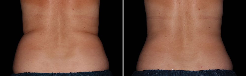 CoolSculpting Gallery - Patient 5750482 - Image 1