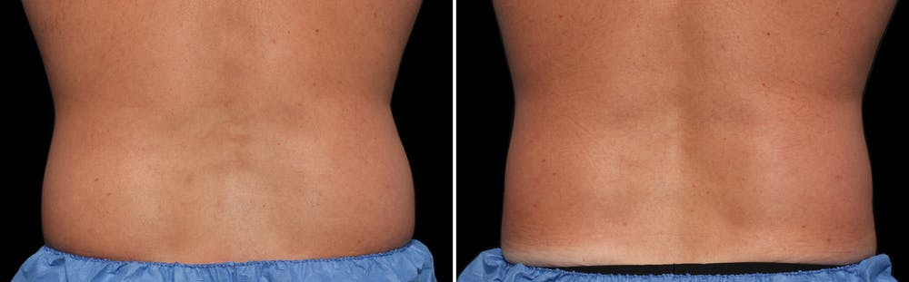 CoolSculpting Gallery - Patient 5750481 - Image 1