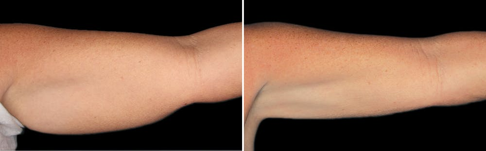 CoolSculpting Gallery - Patient 5750480 - Image 1