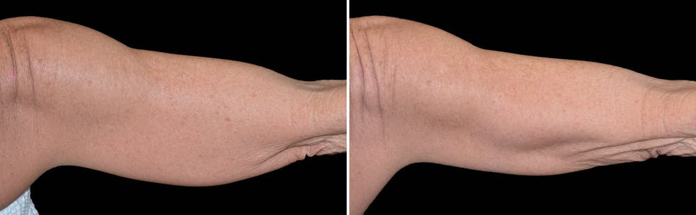 CoolSculpting Gallery - Patient 5750479 - Image 1