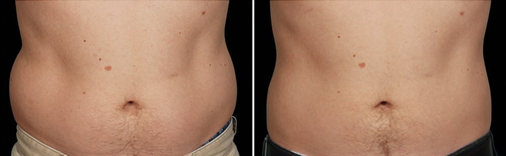 CoolSculpting Gallery - Patient 5750478 - Image 1