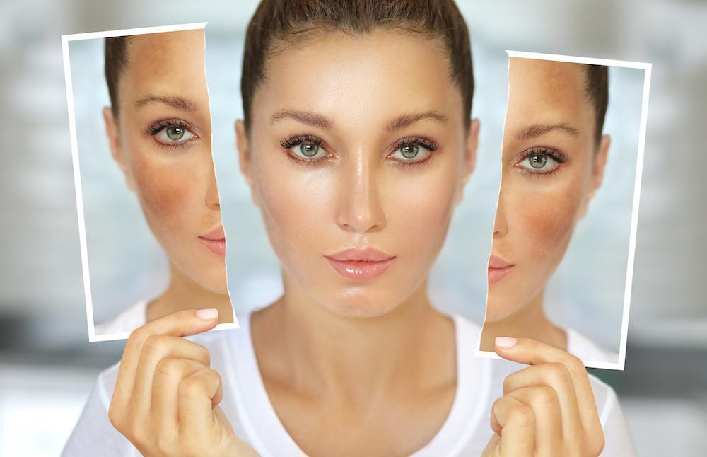 All About Me Medical Day Spa Blog | Reduce the Appearance of Melasma With the Right Treatment