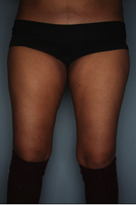 CoolSculpting to the inner, outer thighs before