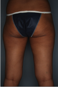 CoolSculpting to the inner, outer thighs