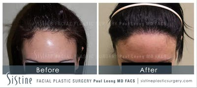 Hair Transplant Gallery - Patient 5468702 - Image 1