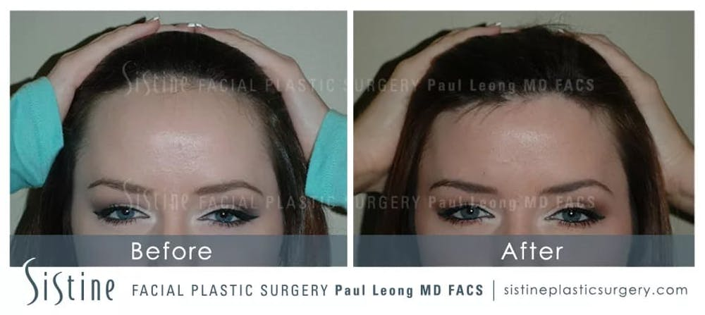 Hair Transplant Gallery - Patient 5468703 - Image 1