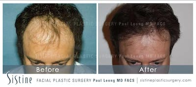 Hair Transplant Gallery - Patient 5468704 - Image 1