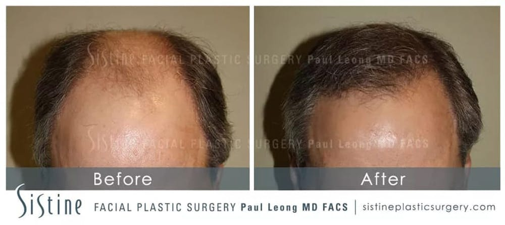 Hair Transplant Gallery - Patient 5468705 - Image 1