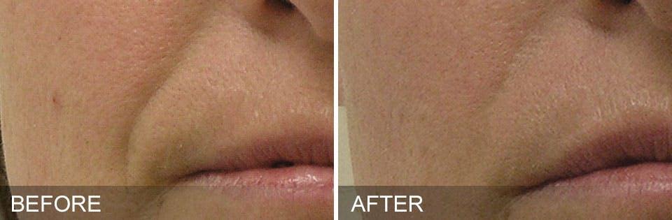 SkinPen Microneedling Gallery - Patient 5698317 - Image 1