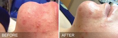 SkinPen Microneedling Gallery - Patient 5698316 - Image 1